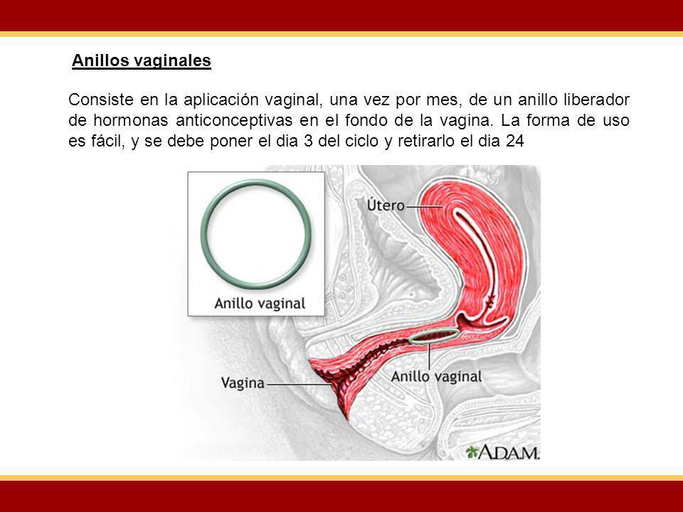 Consiste en la aplicación vaginal, una vez por mes, de un anillo liberador de hormonas anticonceptivas en el fondo de la vagina. La forma de uso es fá