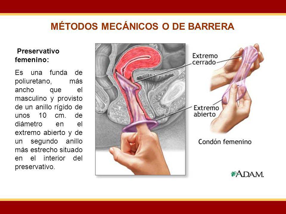 Preservativo femenino: Es una funda de poliuretano, más ancho que el masculino y provisto de un anillo rígido de unos 10 cm. de diámetro en el extremo