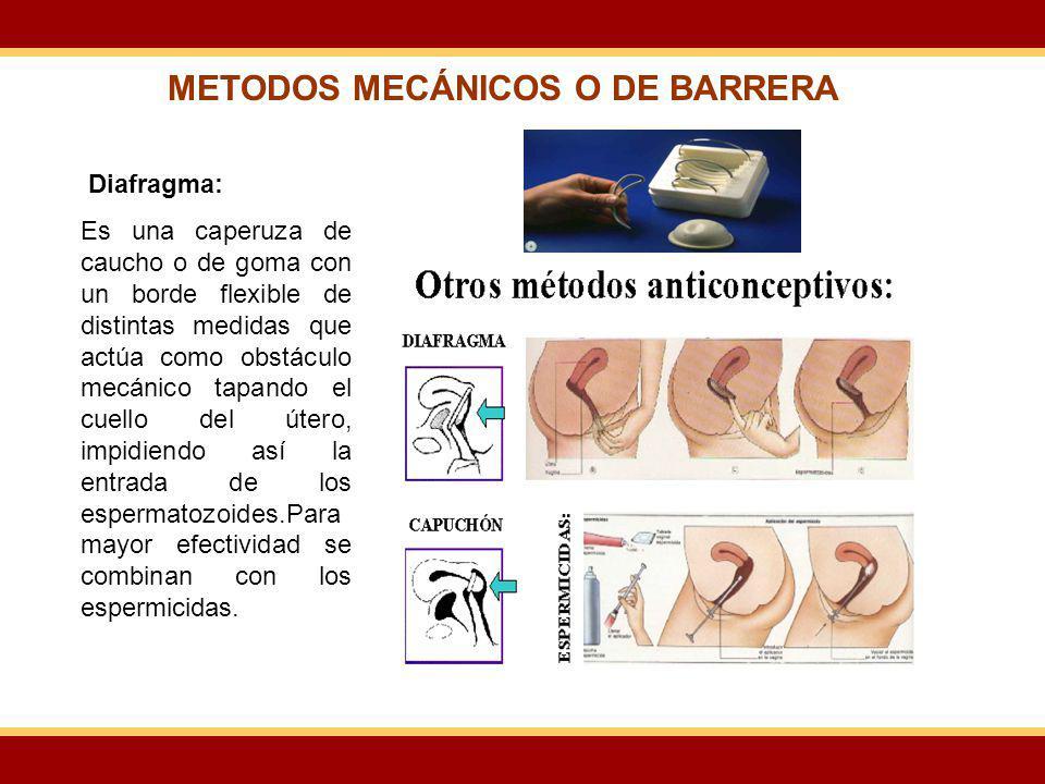 Diafragma: Es una caperuza de caucho o de goma con un borde flexible de distintas medidas que actúa como obstáculo mecánico tapando el cuello del úter