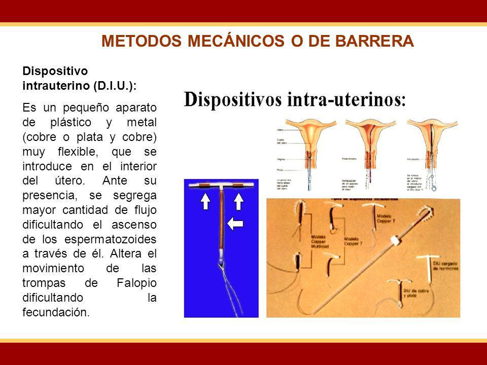 Dispositivo intrauterino (D.I.U.): Es un pequeño aparato de plástico y metal (cobre o plata y cobre) muy flexible, que se introduce en el interior del