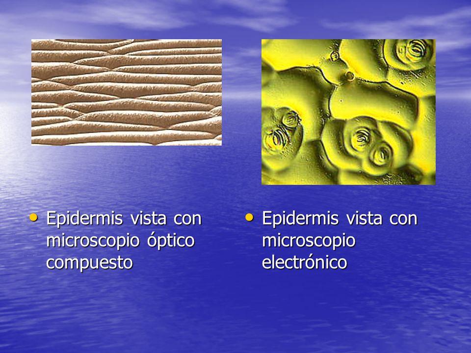 2.- Dermis Es una capa de tejido conjuntivo, muy vascularizado y sensible, ya que contiene numerosos vasos sanguíneos y linfáticos, nervios, glándulas, folículos pilosos y papilas.