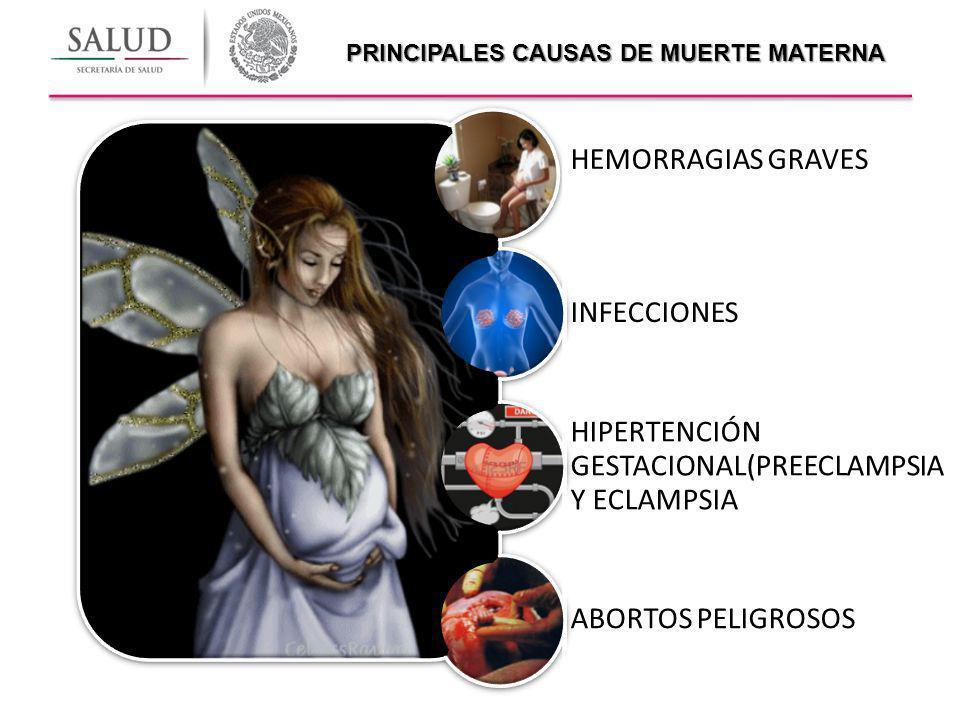 PRINCIPALES CAUSAS DE MUERTE MATERNA