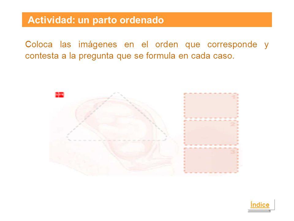 Actividad: un parto ordenado Coloca las imágenes en el orden que corresponde y contesta a la pregunta que se formula en cada caso.