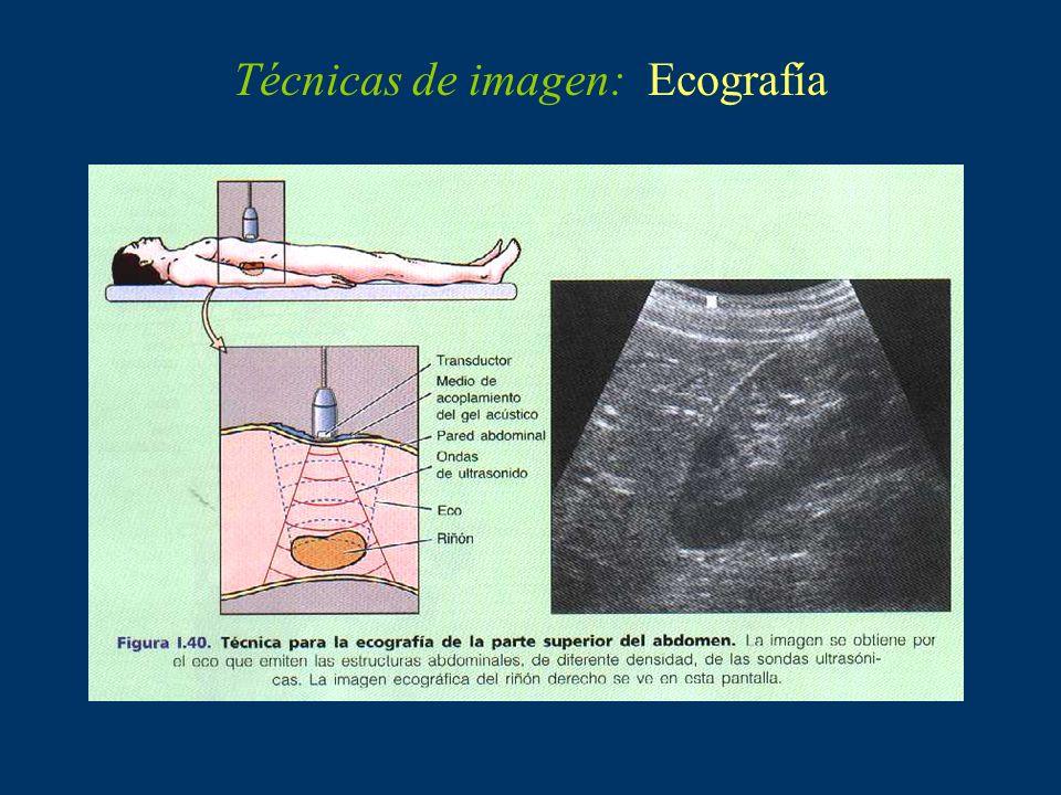 Técnicas de imagen: Resonancia magnética nuclear (RMN)