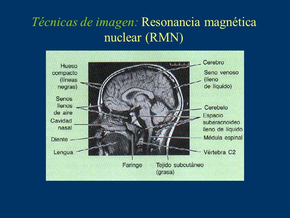 Técnicas de imagen: Gammagrafía ósea (medicina nuclear).