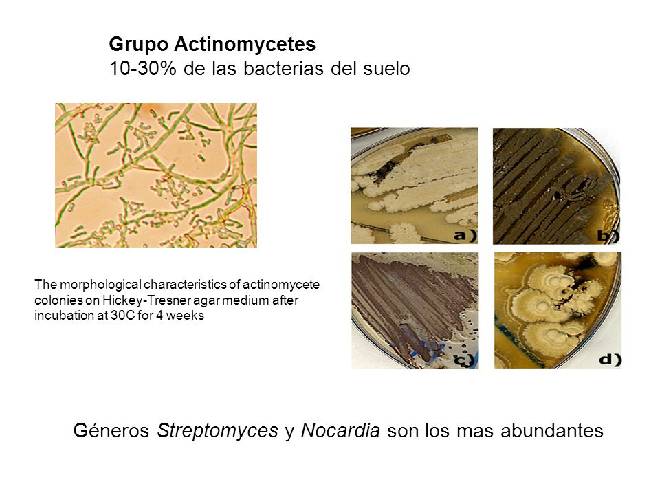 Grupo Actinomycetes 10-30% de las bacterias del suelo The morphological characteristics of actinomycete colonies on Hickey-Tresner agar medium after incubation at 30C for 4 weeks Géneros Streptomyces y Nocardia son los mas abundantes