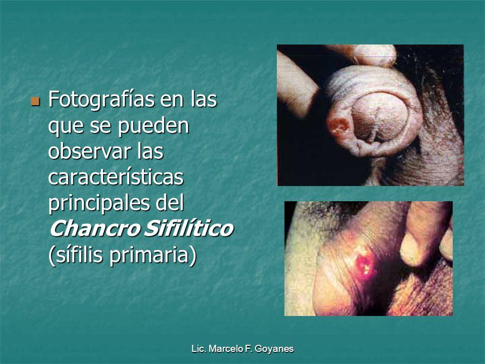 Lic. Marcelo F. Goyanes Fotografías en las que se pueden observar las características principales del Chancro Sifilítico (sífilis primaria)