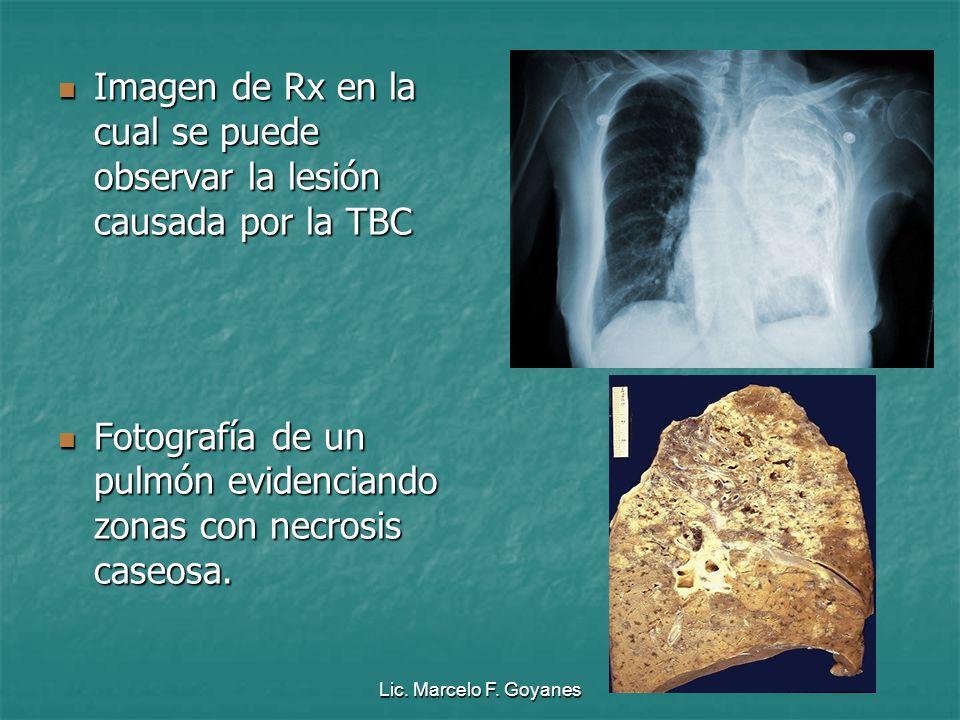 Lic. Marcelo F. Goyanes Imagen de Rx en la cual se puede observar la lesión causada por la TBC Imagen de Rx en la cual se puede observar la lesión cau