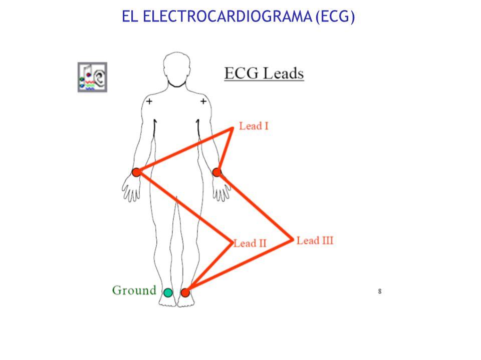 Conducción del P.A. a través de discos intercalados y Gap Junctions