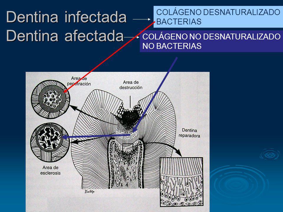 Dentina infectada Dentina afectada COLÁGENO DESNATURALIZADO BACTERIAS COLÁGENO NO DESNATURALIZADO NO BACTERIAS