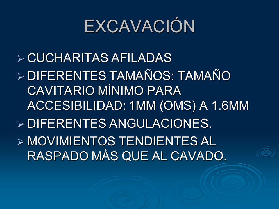 EXCAVACIÓN CUCHARITAS AFILADAS CUCHARITAS AFILADAS DIFERENTES TAMAÑOS: TAMAÑO CAVITARIO MÍNIMO PARA ACCESIBILIDAD: 1MM (OMS) A 1.6MM DIFERENTES TAMAÑO