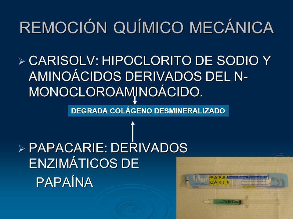 REMOCIÓN QUÍMICO MECÁNICA CARISOLV: HIPOCLORITO DE SODIO Y AMINOÁCIDOS DERIVADOS DEL N- MONOCLOROAMINOÁCIDO. CARISOLV: HIPOCLORITO DE SODIO Y AMINOÁCI