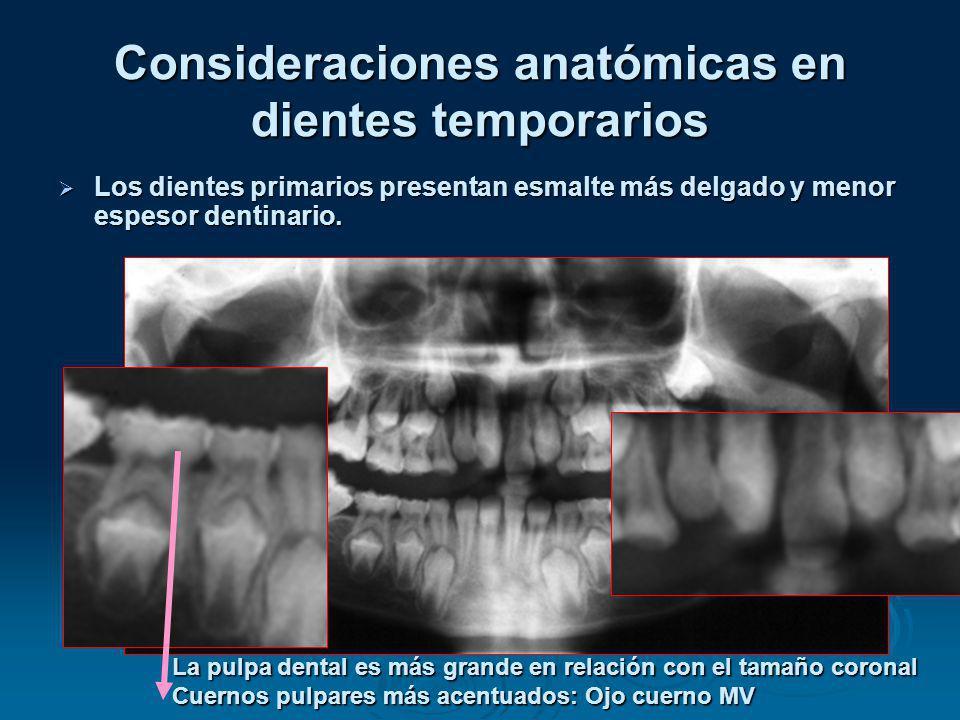 Consideraciones anatómicas en dientes temporarios Los dientes primarios presentan esmalte más delgado y menor espesor dentinario. Los dientes primario