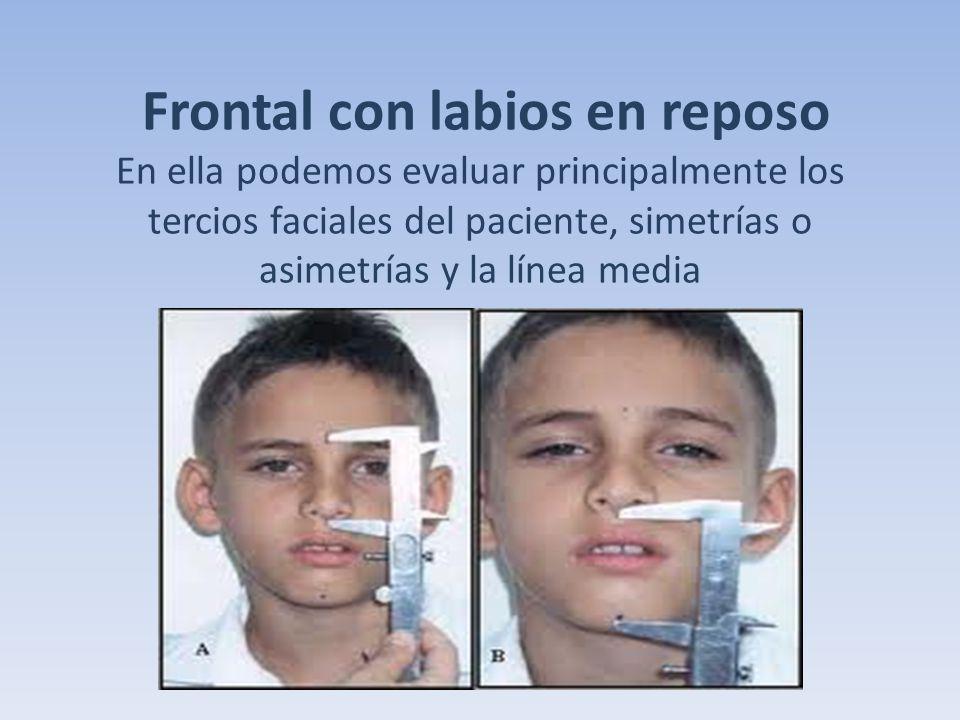 Frontal con labios en reposo En ella podemos evaluar principalmente los tercios faciales del paciente, simetrías o asimetrías y la línea media