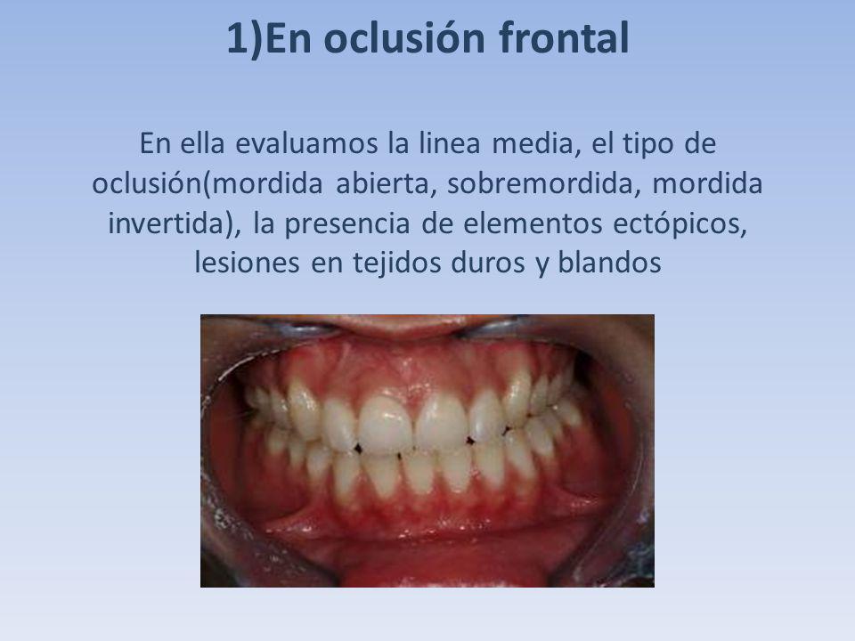 1)En oclusión frontal En ella evaluamos la linea media, el tipo de oclusión(mordida abierta, sobremordida, mordida invertida), la presencia de element