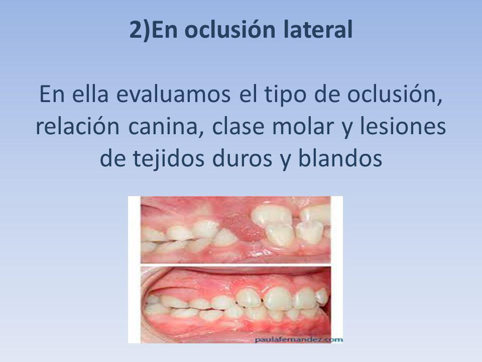 2)En oclusión lateral En ella evaluamos el tipo de oclusión, relación canina, clase molar y lesiones de tejidos duros y blandos