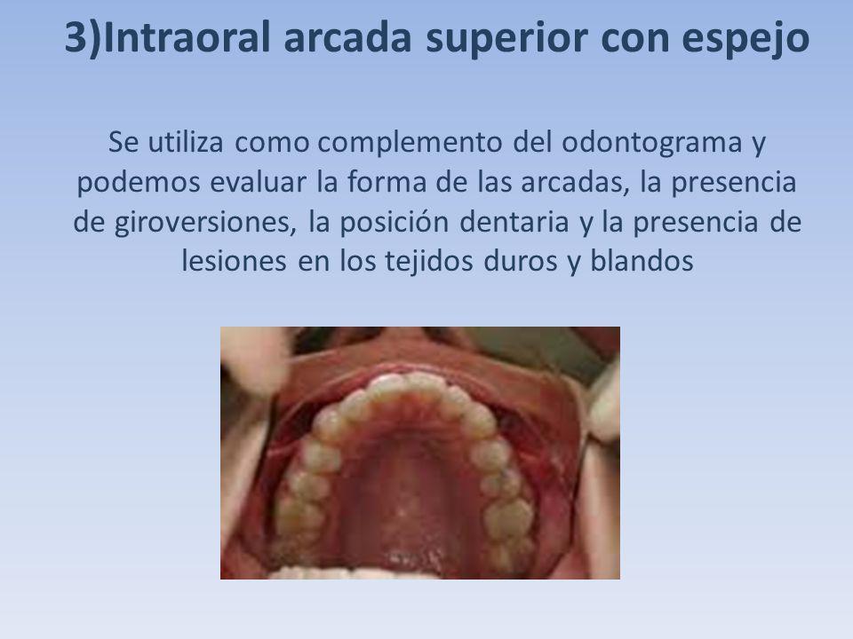 3)Intraoral arcada superior con espejo Se utiliza como complemento del odontograma y podemos evaluar la forma de las arcadas, la presencia de girovers