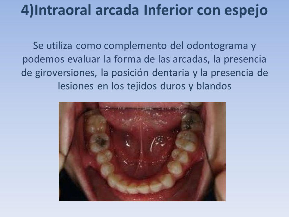 4)Intraoral arcada Inferior con espejo Se utiliza como complemento del odontograma y podemos evaluar la forma de las arcadas, la presencia de girovers