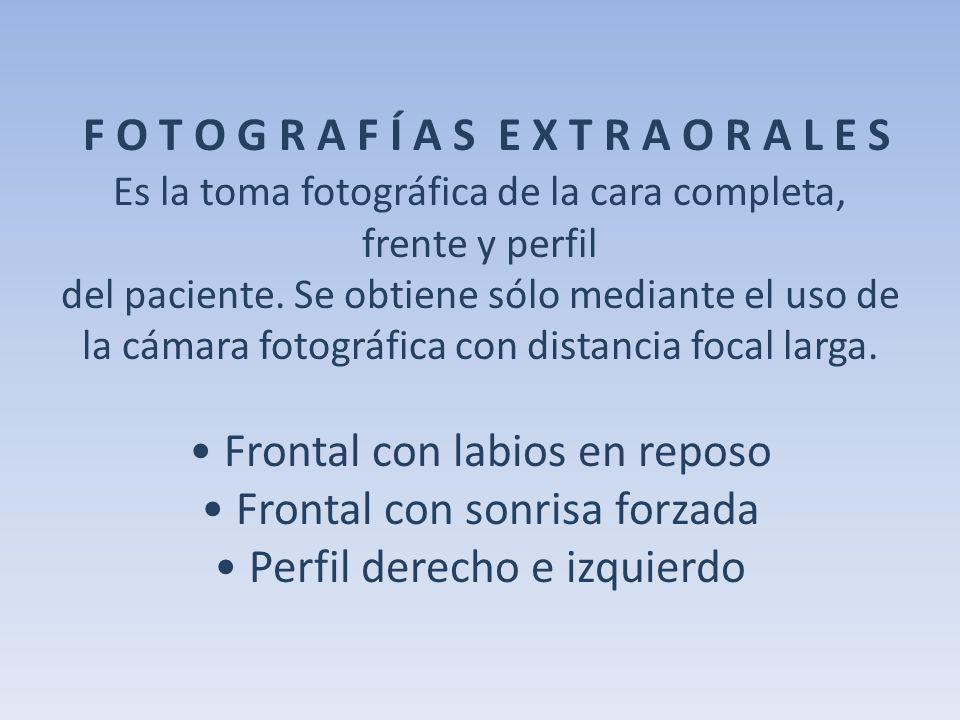 F O T O G R A F Í A S E X T R A O R A L E S Es la toma fotográfica de la cara completa, frente y perfil del paciente. Se obtiene sólo mediante el uso