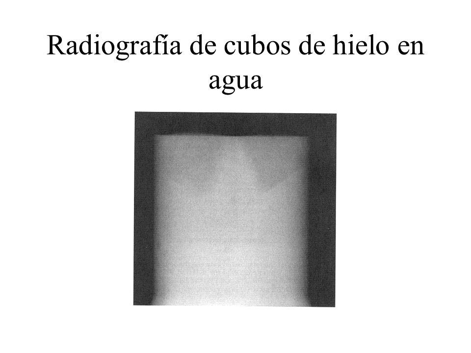 Radiografía de cubos de hielo en agua
