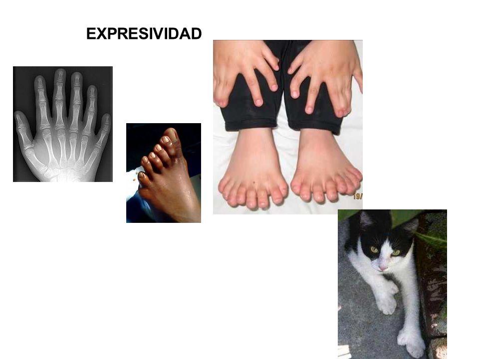 EXPRESIVIDAD