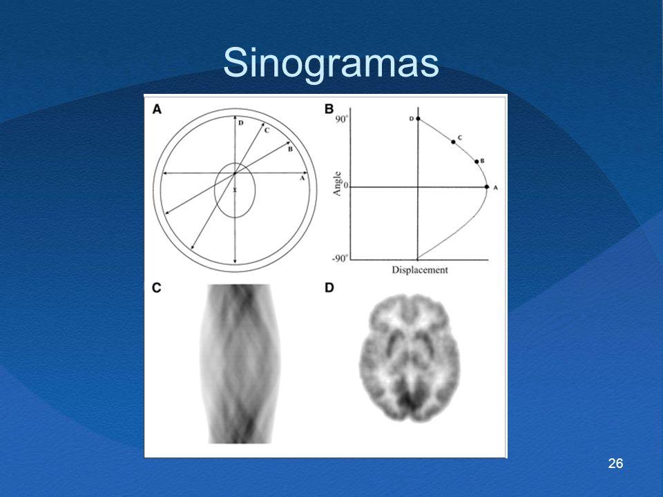26 Sinogramas