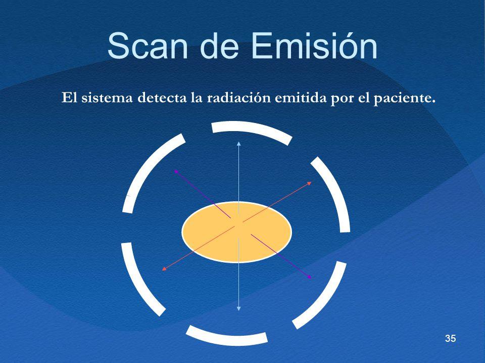 35 Scan de Emisión El sistema detecta la radiación emitida por el paciente.
