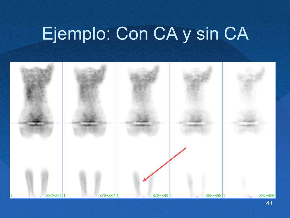 41 Ejemplo: Con CA y sin CA