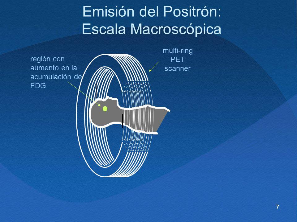 7 región con aumento en la acumulación de FDG multi-ring PET scanner Emisión del Positrón: Escala Macroscópica