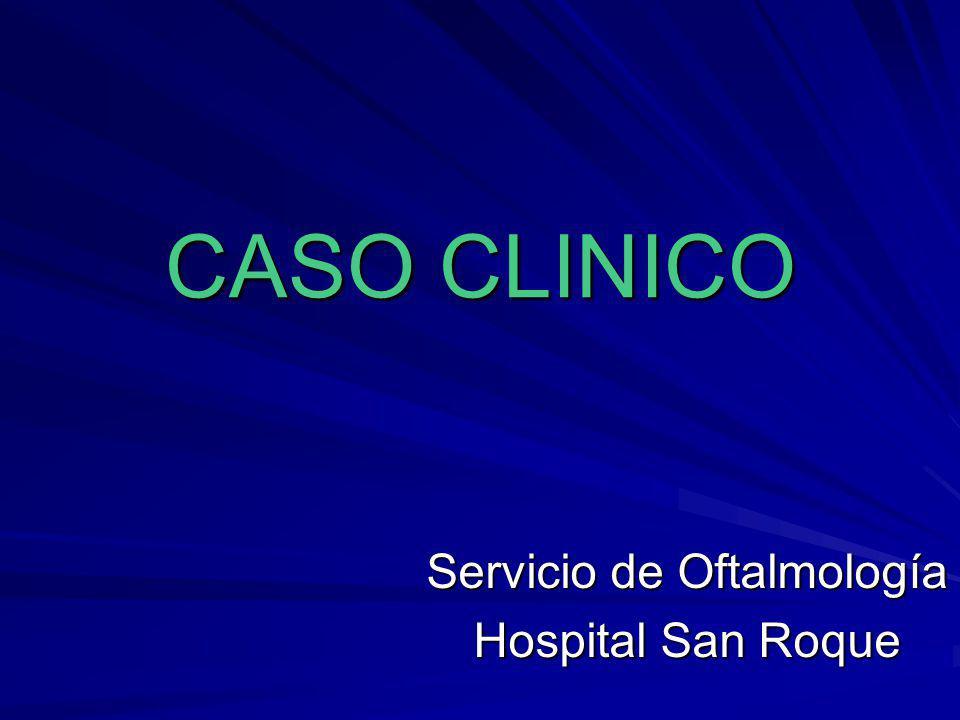 CASO CLINICO Servicio de Oftalmología Hospital San Roque