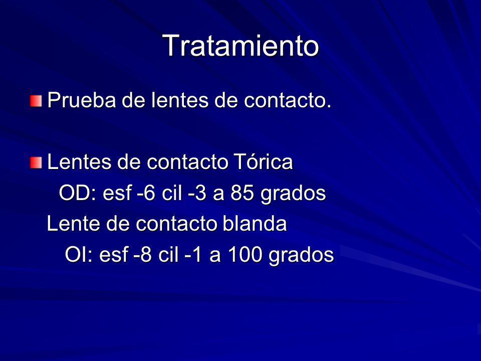 Tratamiento Prueba de lentes de contacto. Lentes de contacto Tórica OD: esf -6 cil -3 a 85 grados OD: esf -6 cil -3 a 85 grados Lente de contacto blan