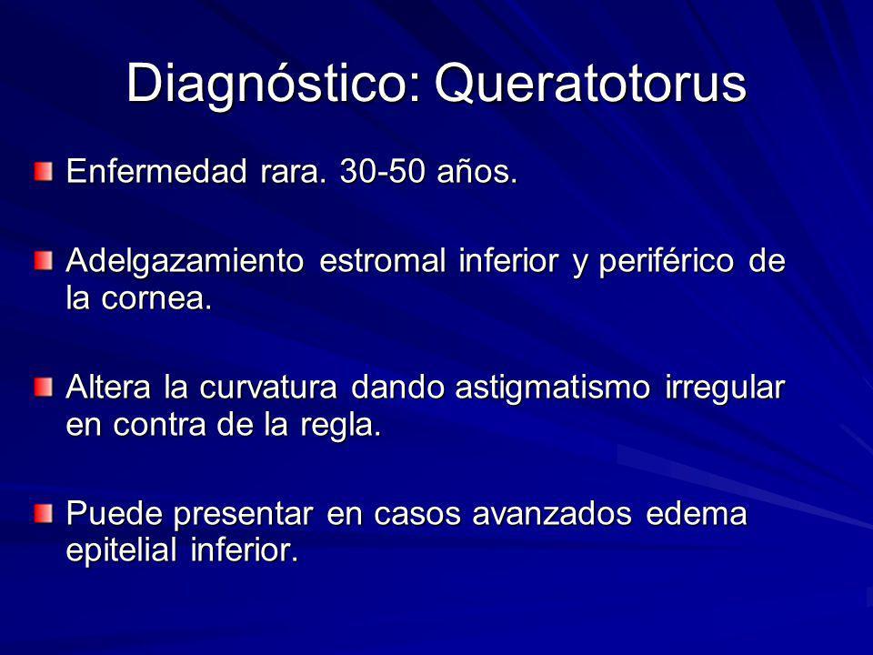 Diagnóstico: Queratotorus Enfermedad rara. 30-50 años. Adelgazamiento estromal inferior y periférico de la cornea. Altera la curvatura dando astigmati