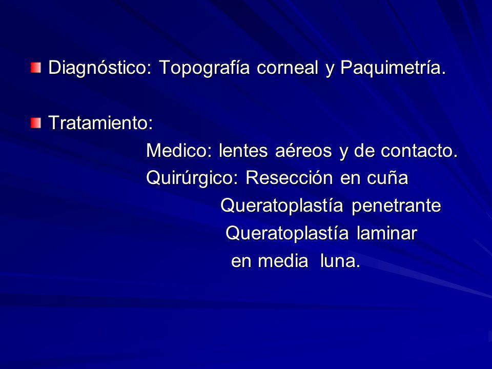 Diagnóstico: Topografía corneal y Paquimetría. Tratamiento: Medico: lentes aéreos y de contacto. Medico: lentes aéreos y de contacto. Quirúrgico: Rese