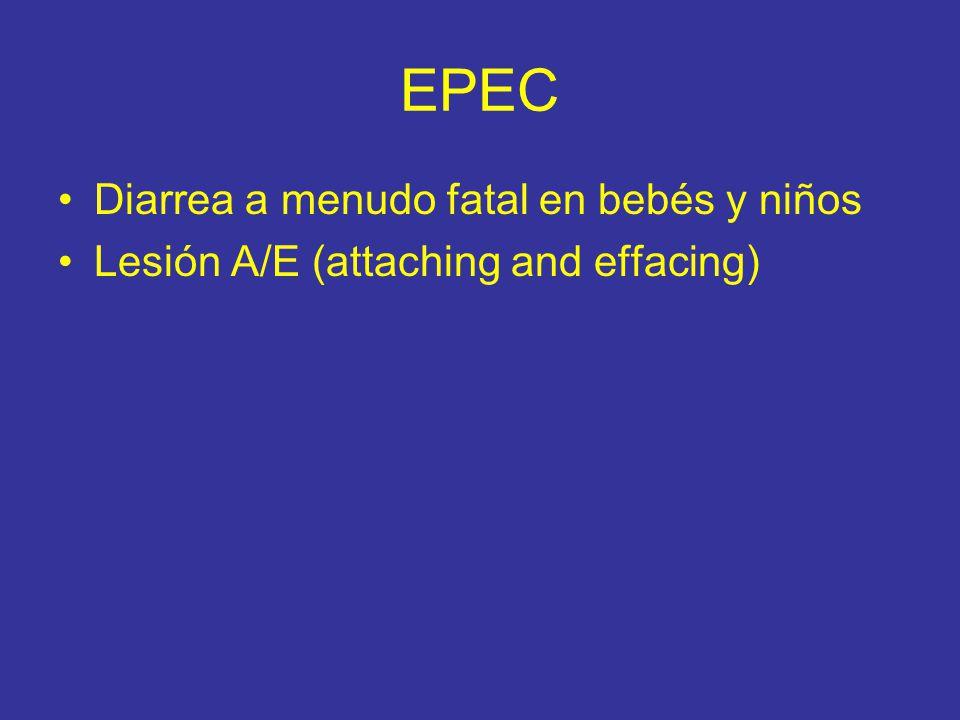 EPEC Diarrea a menudo fatal en bebés y niños Lesión A/E (attaching and effacing)