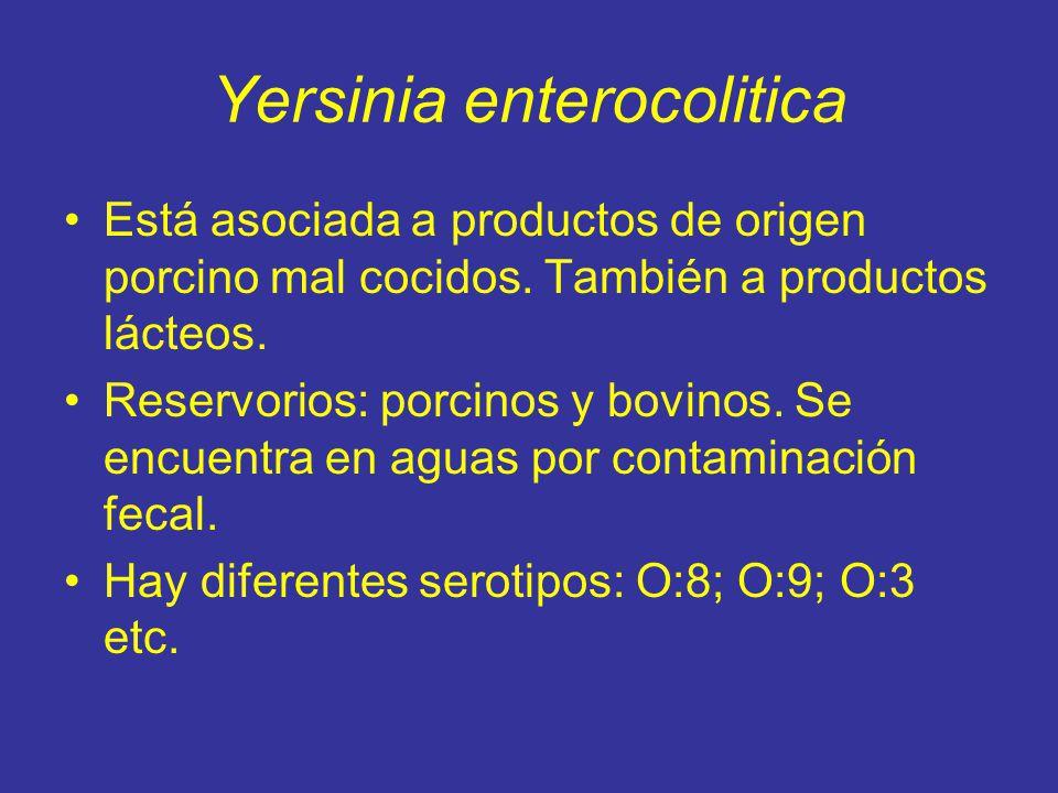 Yersinia enterocolitica Está asociada a productos de origen porcino mal cocidos.