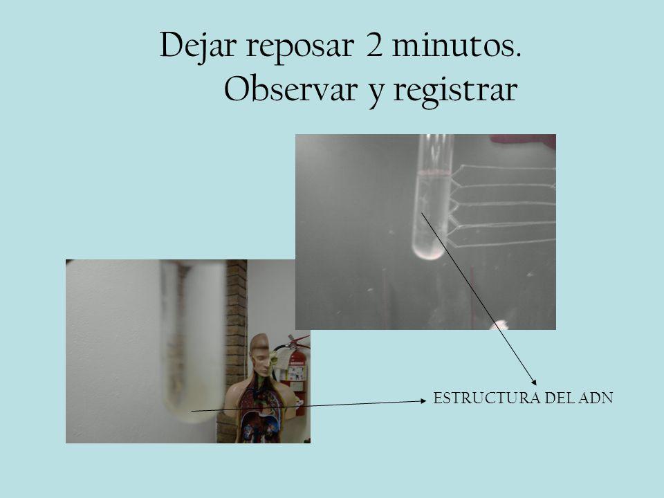 Dejar reposar 2 minutos. Observar y registrar ESTRUCTURA DEL ADN