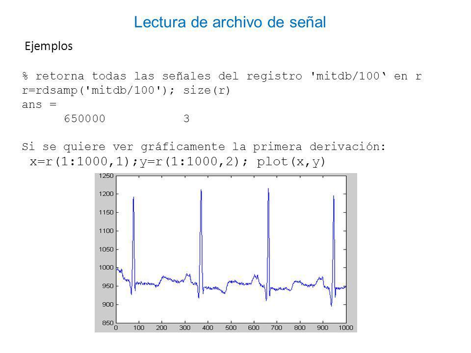 Ejemplos % retorna todas las señales del registro mitdb/100 en r r=rdsamp( mitdb/100 ); size(r) ans = 650000 3 Si se quiere ver gráficamente la primera derivación: x=r(1:1000,1);y=r(1:1000,2); plot(x,y) Lectura de archivo de señal