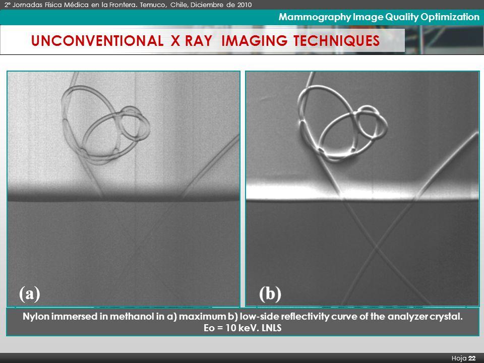 X Seminario Latinoamericano de Análisis por Técnicas de Rayos X, SARX 2006 Hoja 22 Imágenes de Rayos X de Alto Contraste 2º Jornadas Física Médica en la Frontera.