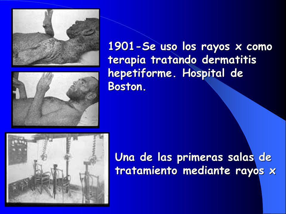1901-Se uso los rayos x como terapia tratando dermatitis hepetiforme.