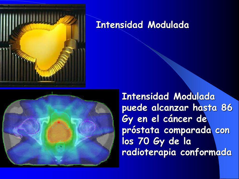 Intensidad Modulada Intensidad Modulada puede alcanzar hasta 86 Gy en el cáncer de próstata comparada con los 70 Gy de la radioterapia conformada