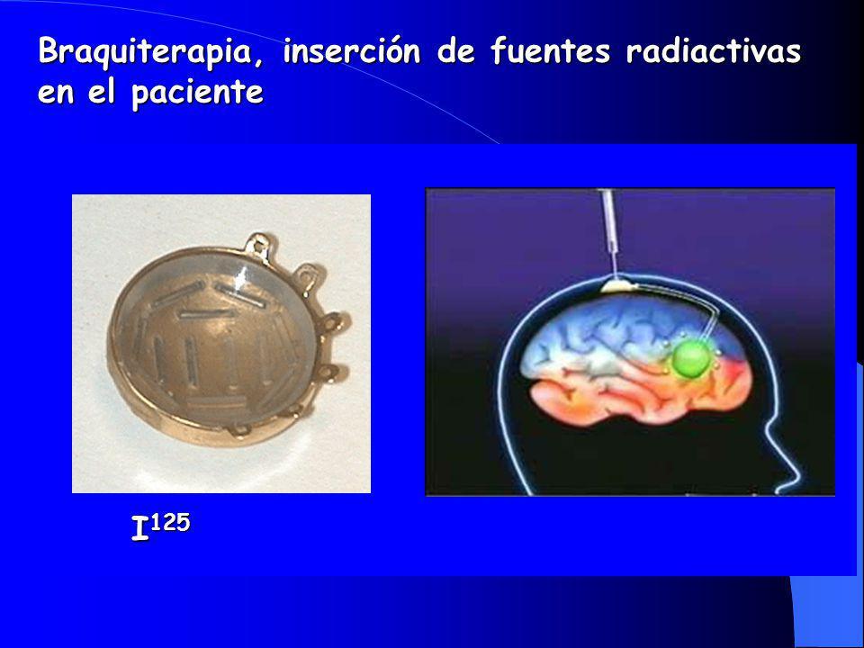 Braquiterapia, inserción de fuentes radiactivas en el paciente I 125