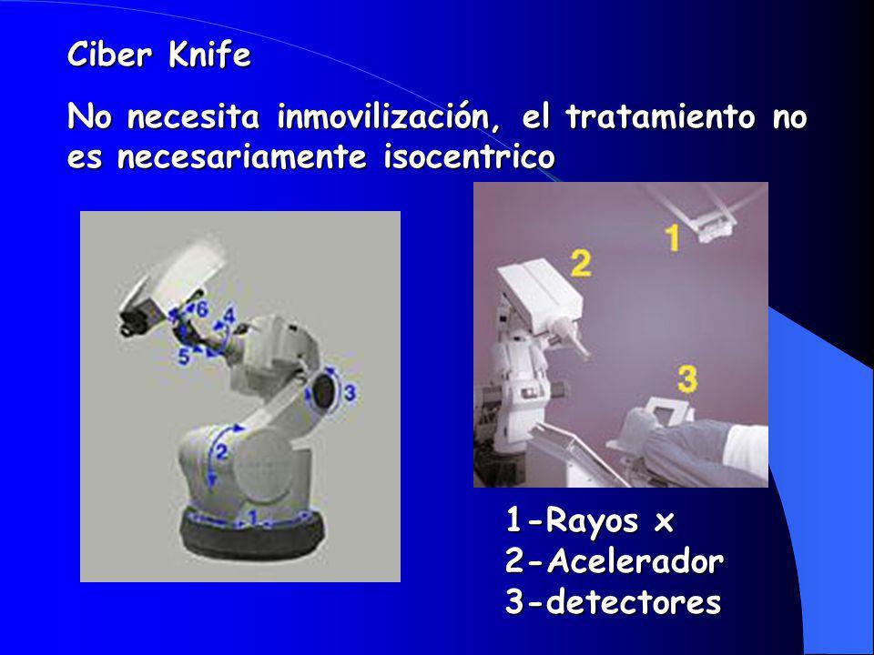Ciber Knife No necesita inmovilización, el tratamiento no es necesariamente isocentrico 1-Rayos x 2-Acelerador 3-detectores