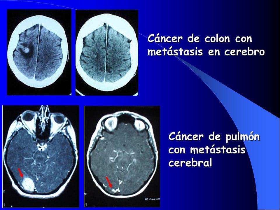 Cáncer de colon con metástasis en cerebro Cáncer de pulmón con metástasis cerebral