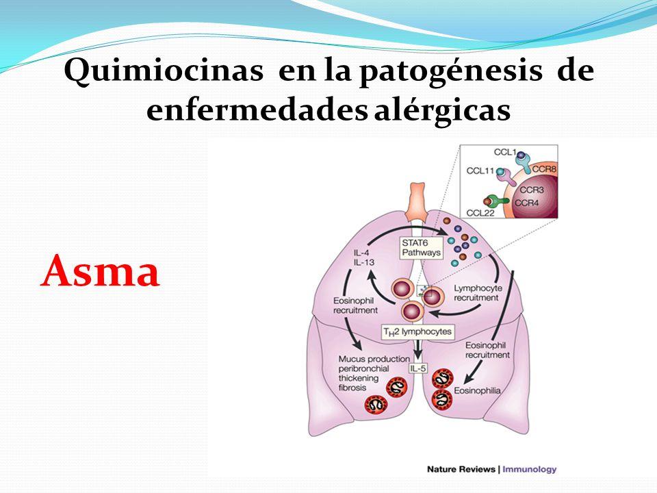 Asma Quimiocinas en la patogénesis de enfermedades alérgicas
