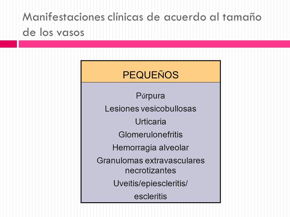 Manifestaciones clínicas de acuerdo al tamaño de los vasos PEQUE Ñ OS P ú rpura Lesiones vesicobullosas Urticaria Glomerulonefritis Hemorragia alveola