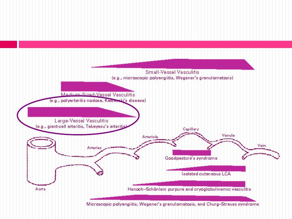 GRANULOMATOSIS DE WEGENER Criterios de clasificación ACR 1.