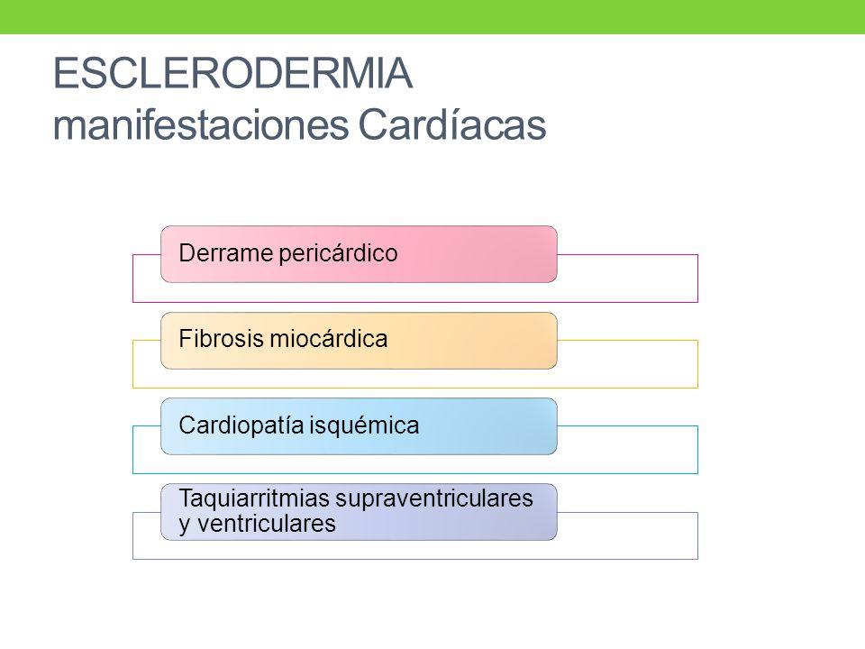 ESCLERODERMIA manifestaciones Cardíacas Derrame pericárdicoFibrosis miocárdicaCardiopatía isquémica Taquiarritmias supraventriculares y ventriculares