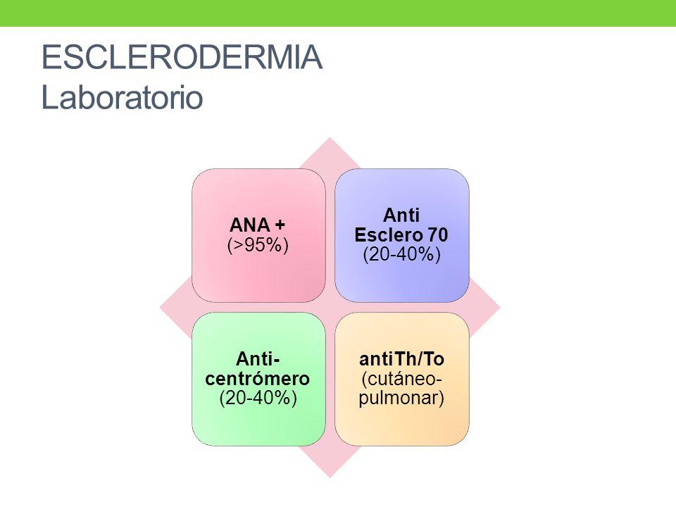 ESCLERODERMIA Laboratorio ANA + (>95%) Anti Esclero 70 (20-40%) Anti- centrómero (20-40%) antiTh/To (cutáneo- pulmonar)