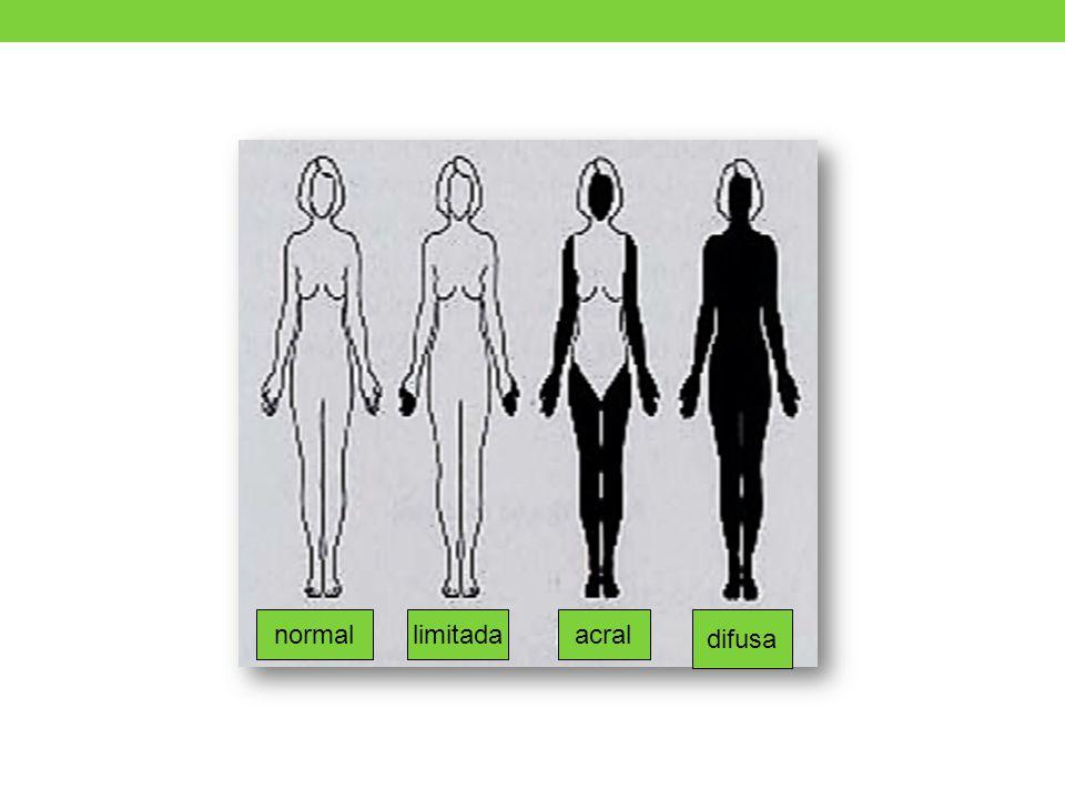 Hígado Fibrosis tracto biliar o hepático Cirrosis biliar primaria en superposición Intestino delgado Diarrea intermitente o crónica Síndrome de asa ciega Intestino grueso Constipación Seudodivertículos Prolapso rectal e incontinencia anal