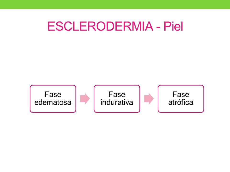 Autoanticuerpos característicos en Esclerosis Sistémica AnticuerpoPatrón IFPrevalencia Anti-Scl70 (Topo1) Anti-centrómero Anti-nucleolares Granulado fino difuso Moteado discreto Nucleolar ES total: 20-30% difusa: 20-40% ES total: 30% Limitada: 50-90% ES total: 30-40% (> difusa) PM-Scl ARN polimerasa 1 Fibrilarina Nucleolar homogéneo Nucleolar homogéneo Nucleolar Clumpy ES/PM ES difusa Hipertensión pulmonar.